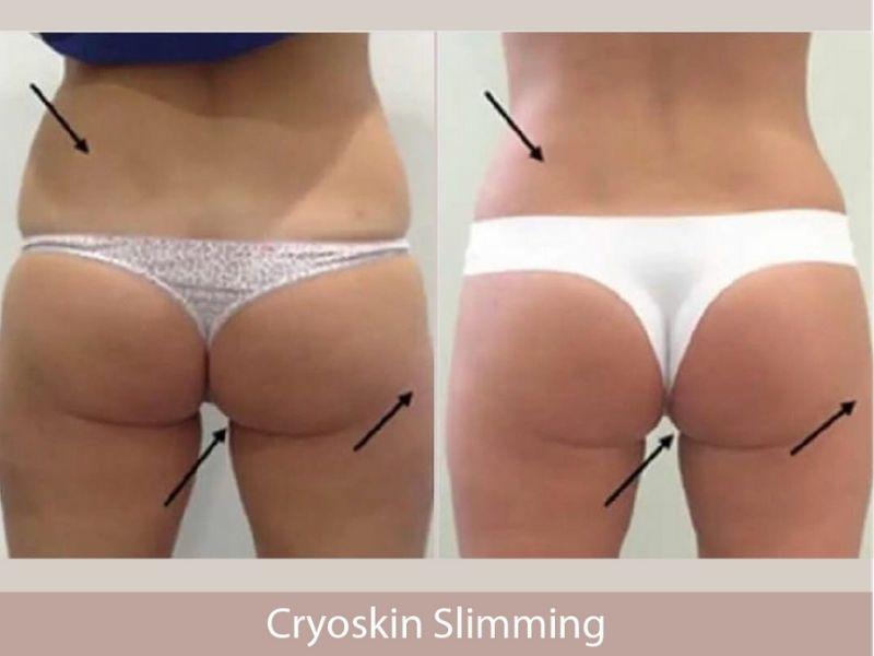 Cryoskin: The Safest Fat Freezing Method Available